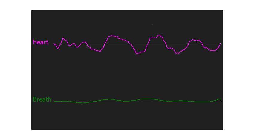 京大とパナソニック、非接触で心拍間隔を計測する生体情報センシング技術の開発に成功