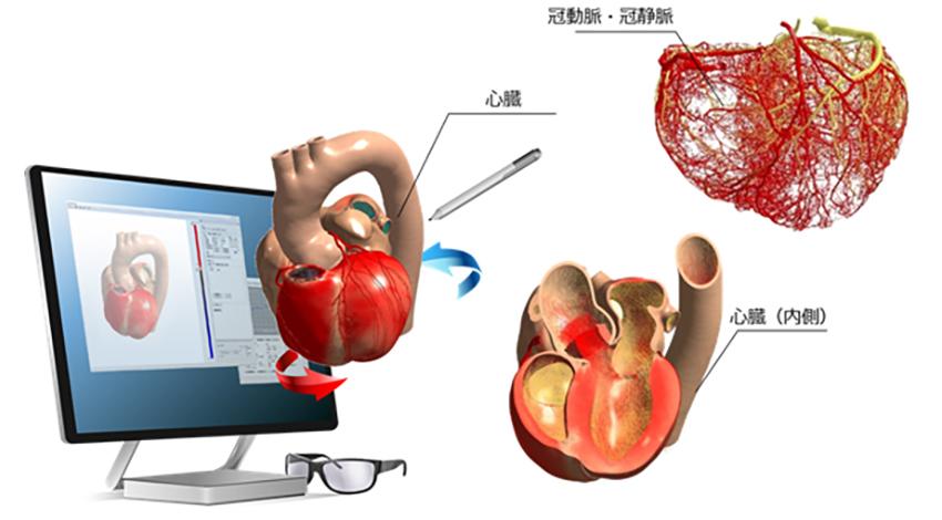 富士通、心臓の挙動を学習する「Heart Explorer」を販売開始