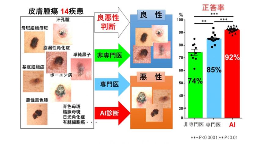 筑波大と京セラグループ、皮膚腫瘍の良悪性を判定するAI診断補助システムを開発