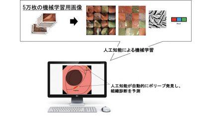 エルピクセルなど、大腸内視鏡病変検出・鑑別診断サポートを行うAIを開発