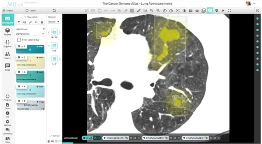 NTTデータ、重篤な疾病をAIで分析する「AI画像診断支援」インドでの実証実験を完了