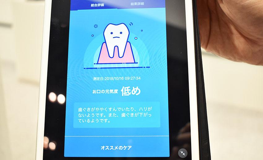 ライオン、口臭リスクをAIで見える化するスマートフォンアプリを開発 —CEATEC JAPAN2018レポート3