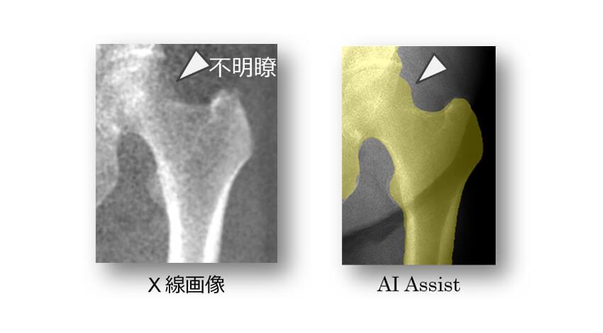島津製作所、AI活用で高精度な骨密度測定を瞬時に行うX線TVシステムを販売開始