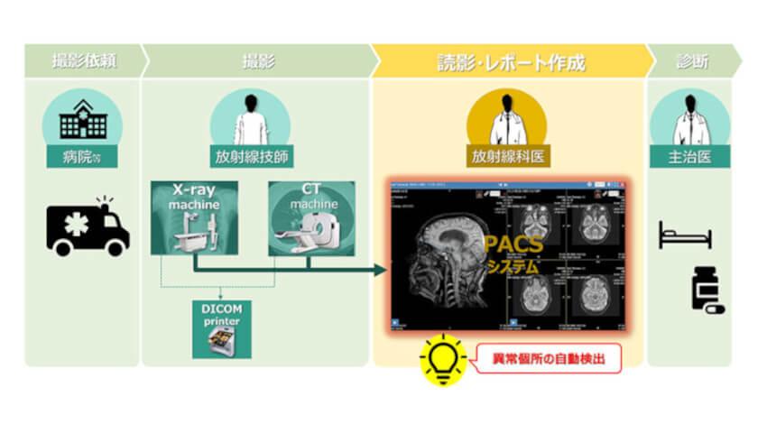 NTTデータとNTT東日本関東病院、胸部CTの診断プロセスへのAI画像診断技術の適用を目指し共同検証を開始