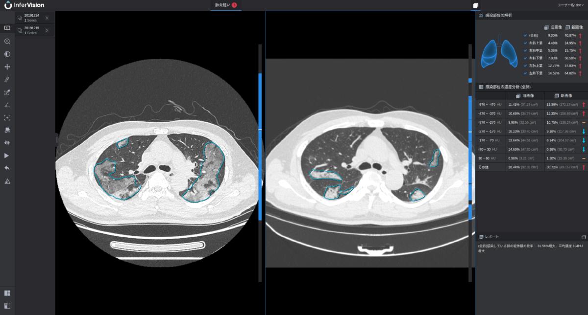 医師の画像診断を支えるディープラーニング技術