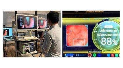 ソフトバンクとAIメディカルサービス、内視鏡検査映像を5Gで伝送してAIによる画像診断補助を行う実証実験を実施