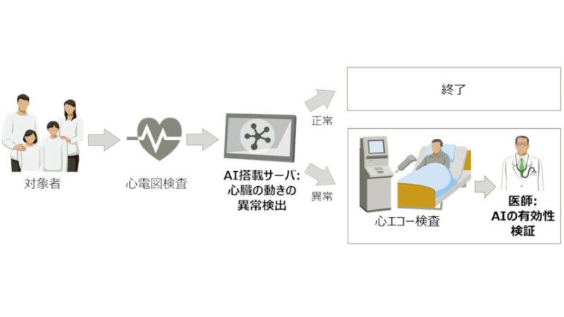 富士通と東大病院、心電図から心臓の動きの異常を推定するAIの臨床研究を開始